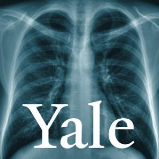 Yale Healthcasts